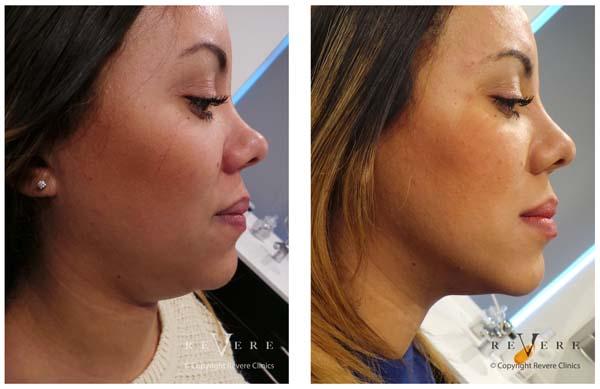 Aqualyx Laserderm Clinics Foremost Skin Clinic In Nigeria