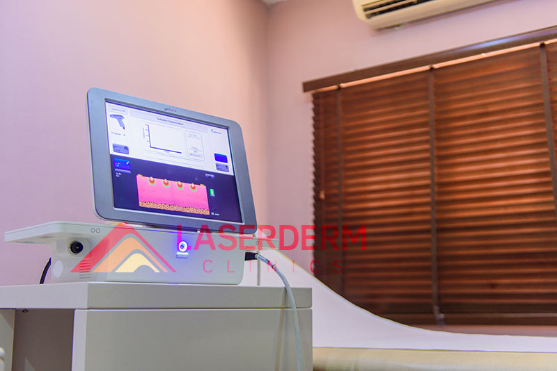 laserderm-clinic-ematrix