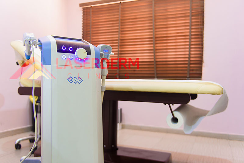 laserderm-clinics-exilis-machine
