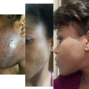 laserderm_clinics-before and after